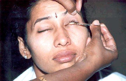 Anjana Treatment