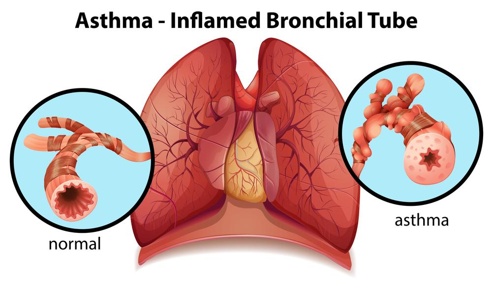 Ayurvedic Treatment for Asthama