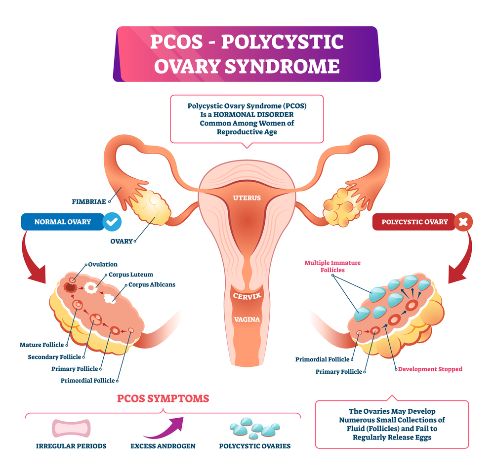 Ayurvedic Treatment for Polycystic ovary syndrome